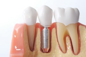 Your dental implant dentist in Arlington will complete your smile.