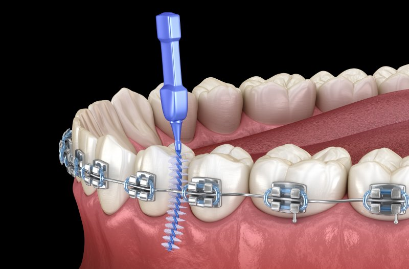 a digital image of metal braces and an interdental brush