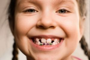 Child with braces only on bottom front teeth