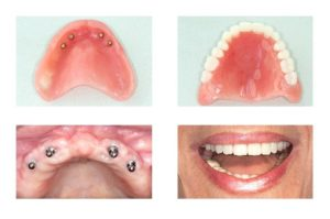 Replacing teeth with dentures