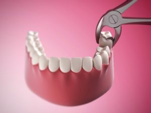 model of tooth extraction