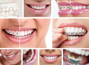 You can have a clean, comfortable smile with braces. Arlington orthodontist at Allheart Dental Care says how best to care for your braces.