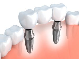 Dental Implants in Arlington, TX are today's best tooth replacement option. Allheart Dental places these prosthetics for beautiful and durable smiles.