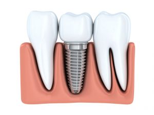 Dental implants in Arlington replace damaged teeth from root to crown. Read answers to questions about these prosthetics placed by Allheart Dental.